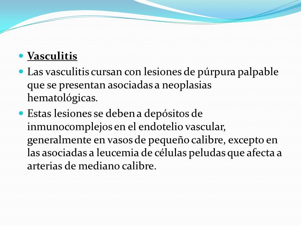 Vasculitis Las vasculitis cursan con lesiones de púrpura palpable que se presentan asociadas a neoplasias hematológicas.