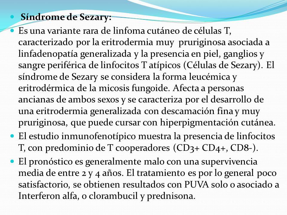 Síndrome de Sezary:
