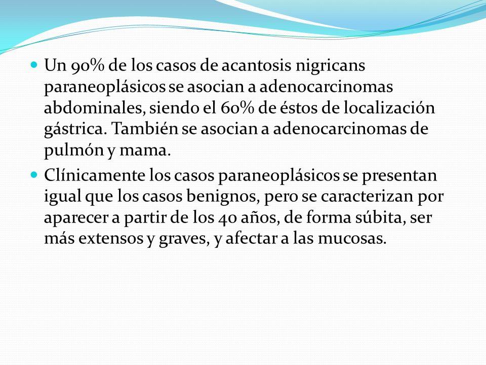 Un 90% de los casos de acantosis nigricans paraneoplásicos se asocian a adenocarcinomas abdominales, siendo el 60% de éstos de localización gástrica. También se asocian a adenocarcinomas de pulmón y mama.