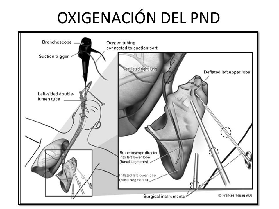 OXIGENACIÓN DEL PND