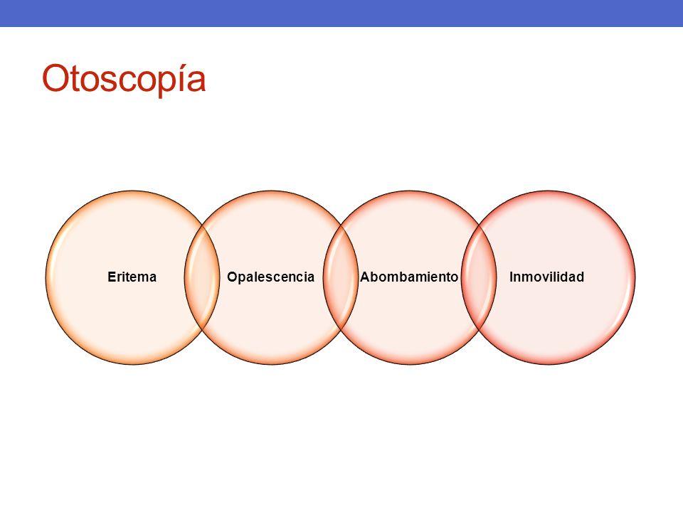 Otoscopía Eritema Opalescencia Abombamiento Inmovilidad
