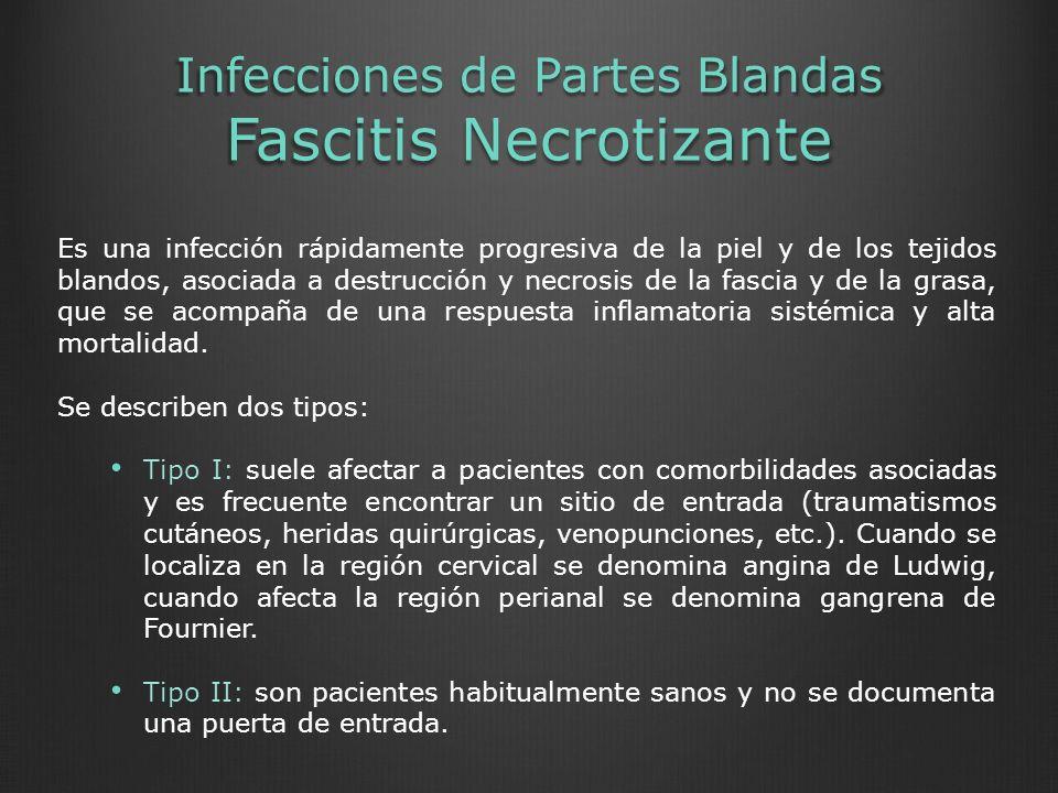 Infecciones de Partes Blandas Fascitis Necrotizante