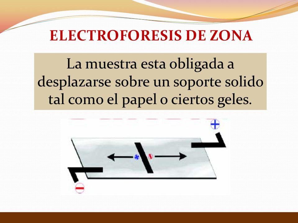 ELECTROFORESIS DE ZONA