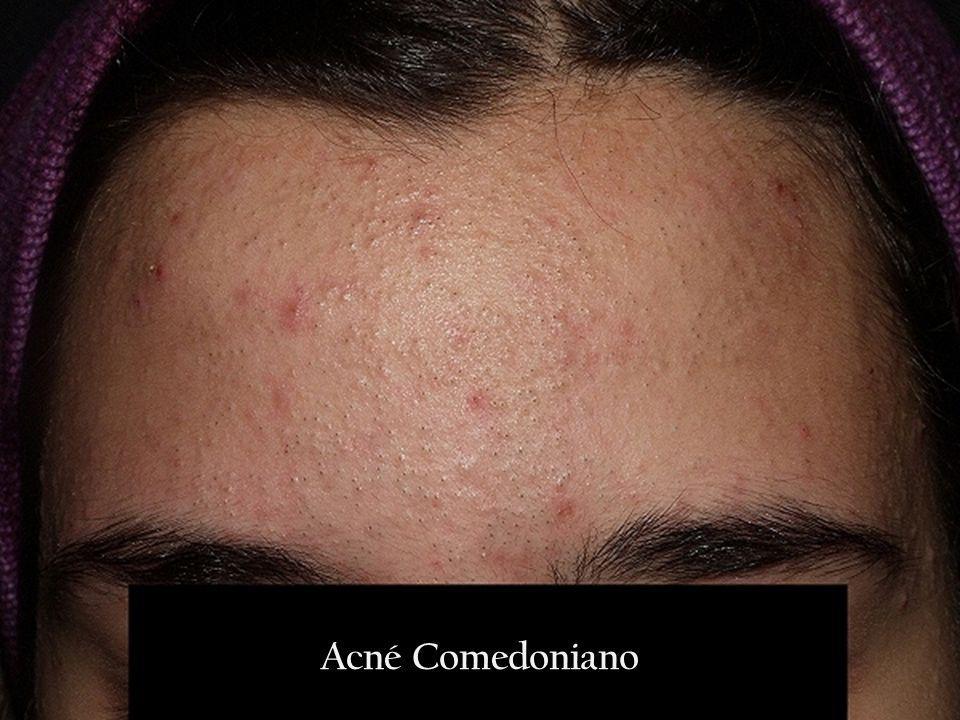 Acné Comedoniano