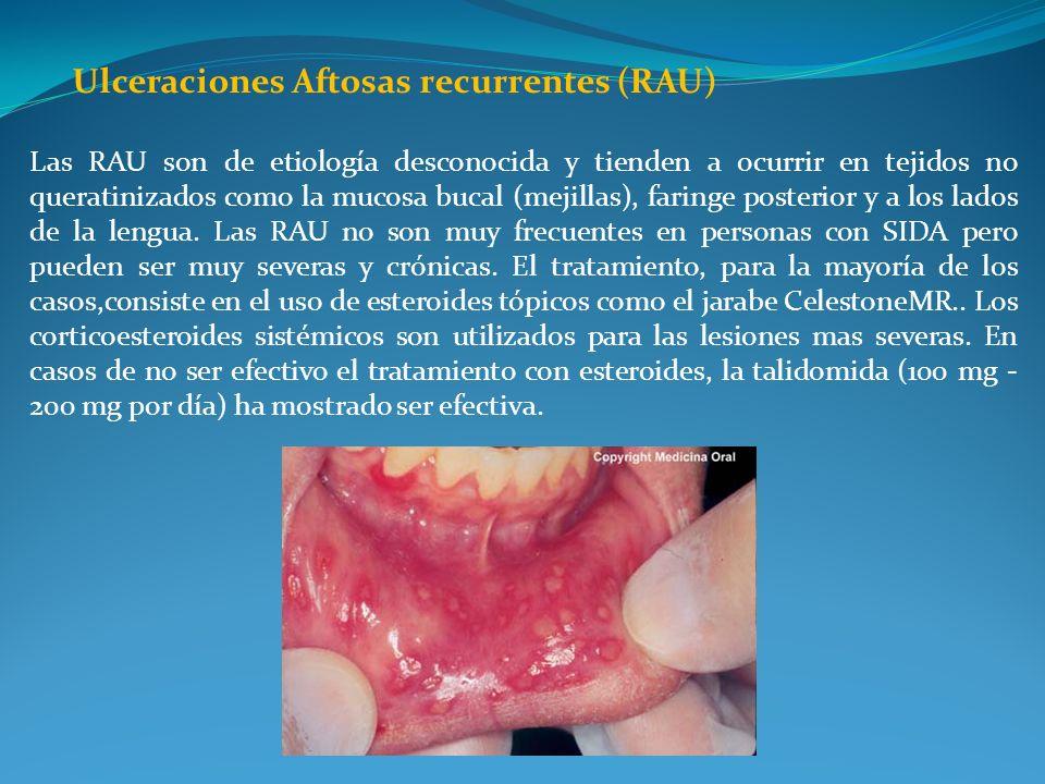 Ulceraciones Aftosas recurrentes (RAU)
