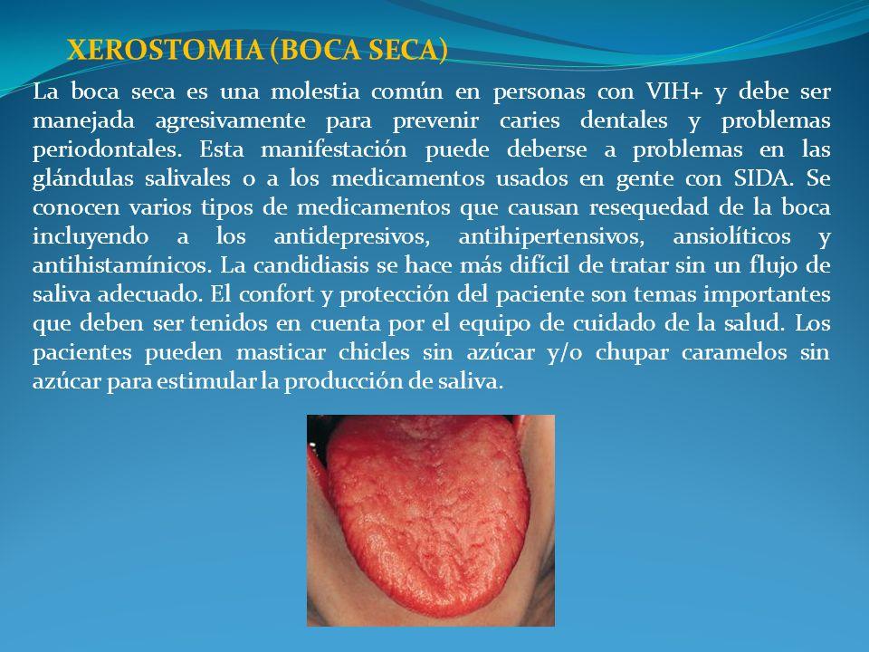 XEROSTOMIA (BOCA SECA)