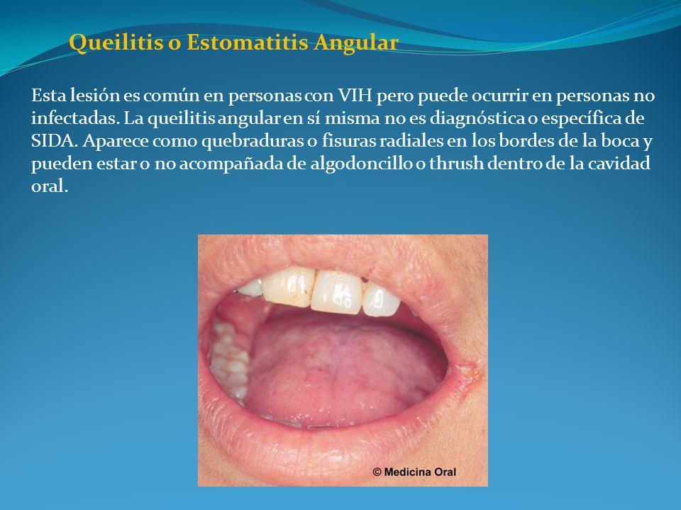Queilitis o Estomatitis Angular