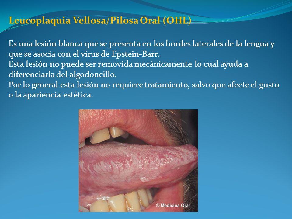 Leucoplaquia Vellosa/Pilosa Oral (OHL)