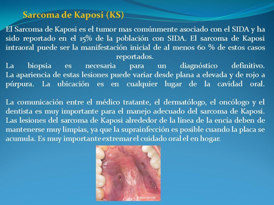 Sarcoma de Kaposi (KS)