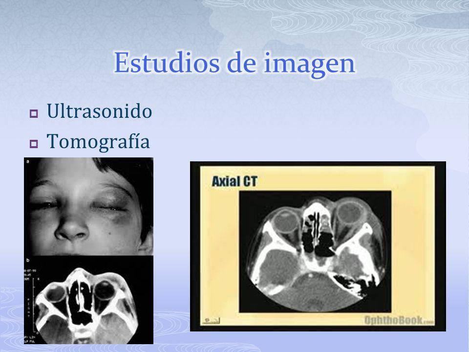 Estudios de imagen Ultrasonido Tomografía