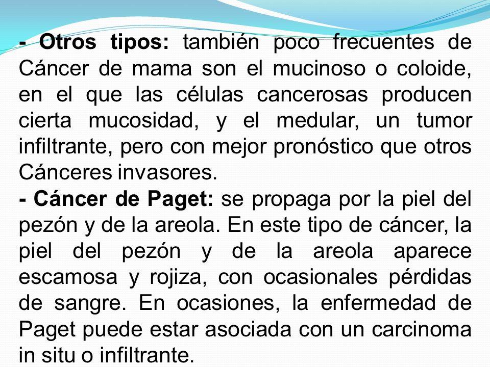 - Otros tipos: también poco frecuentes de Cáncer de mama son el mucinoso o coloide, en el que las células cancerosas producen cierta mucosidad, y el medular, un tumor infiltrante, pero con mejor pronóstico que otros Cánceres invasores.