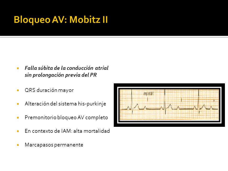 Bloqueo AV: Mobitz II Falla súbita de la conducción atrial sin prolongación previa del PR. QRS duración mayor.