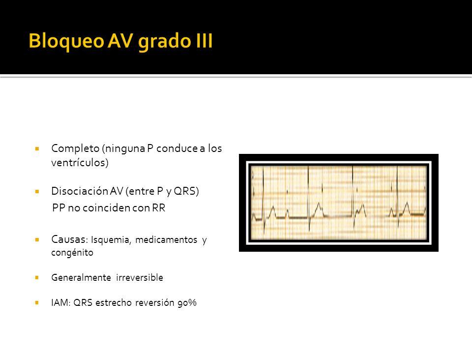 Bloqueo AV grado III Completo (ninguna P conduce a los ventrículos)