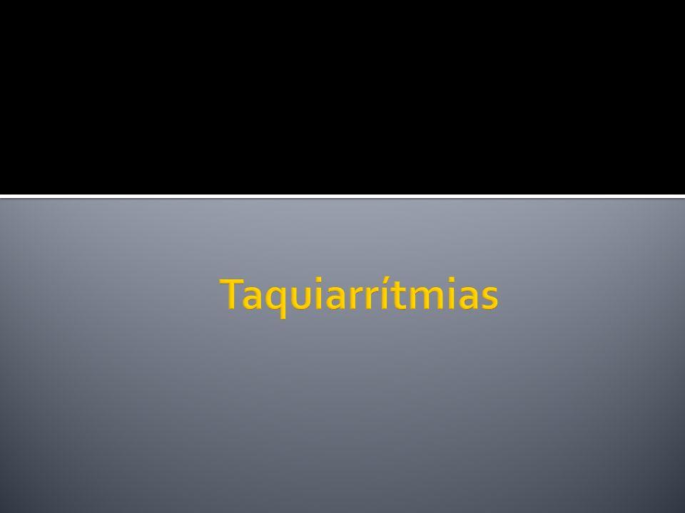 Taquiarrítmias