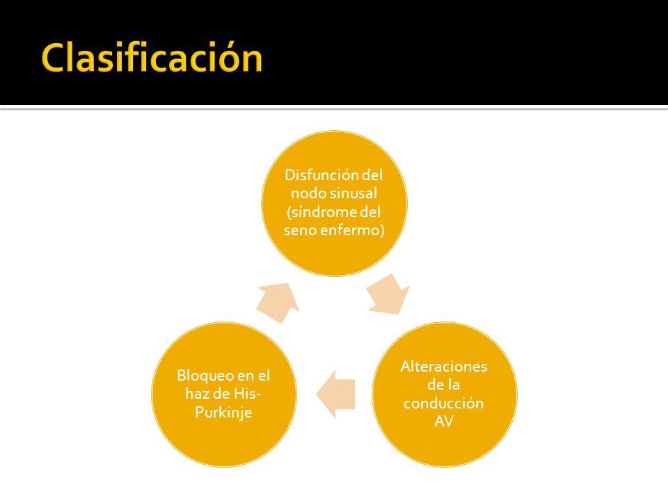 Clasificación Disfunción del nodo sinusal (síndrome del seno enfermo)