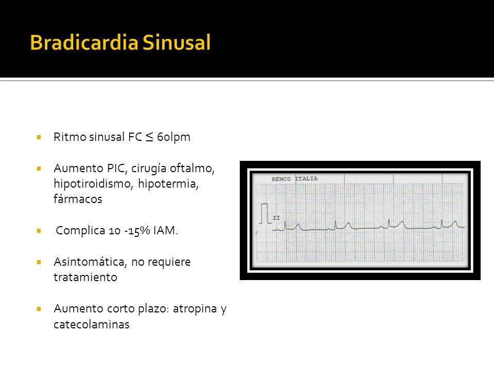 Bradicardia Sinusal Ritmo sinusal FC ≤ 60lpm