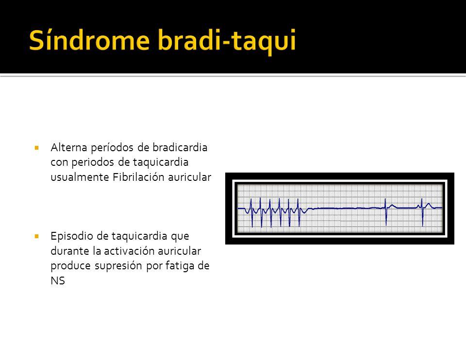 Síndrome bradi-taqui Alterna períodos de bradicardia con periodos de taquicardia usualmente Fibrilación auricular.