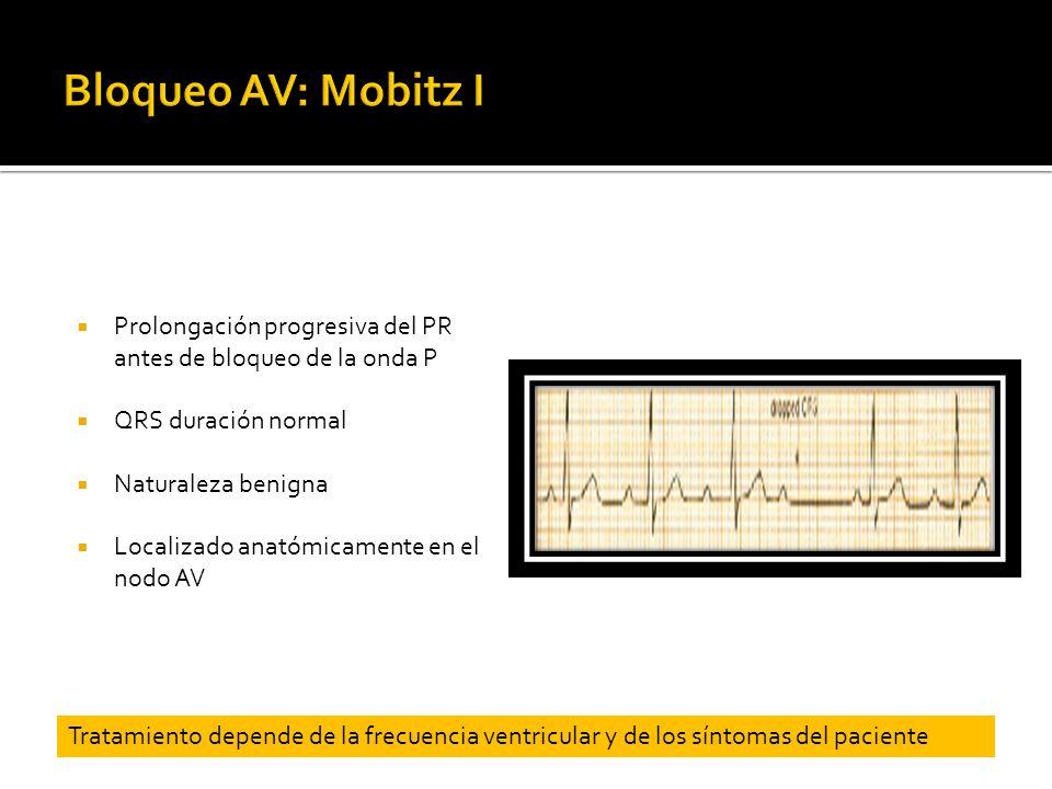 Bloqueo AV: Mobitz I Prolongación progresiva del PR antes de bloqueo de la onda P. QRS duración normal.