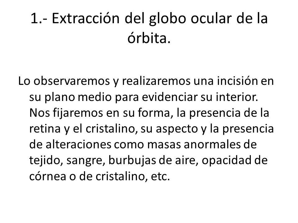1.- Extracción del globo ocular de la órbita.