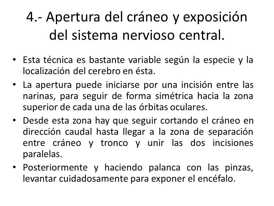 4.- Apertura del cráneo y exposición del sistema nervioso central.