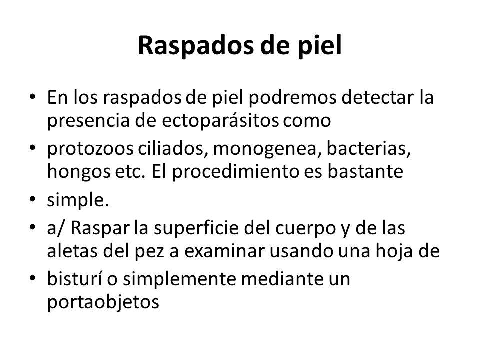 Raspados de piel En los raspados de piel podremos detectar la presencia de ectoparásitos como.