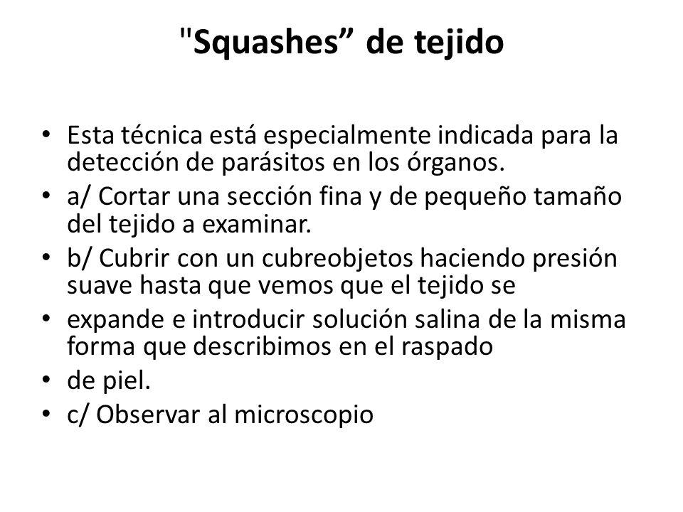 Squashes de tejido Esta técnica está especialmente indicada para la detección de parásitos en los órganos.
