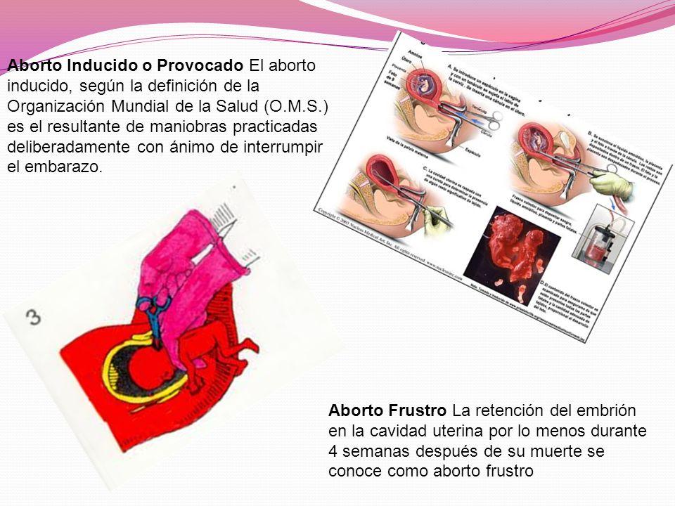 Aborto Inducido o Provocado El aborto inducido, según la definición de la Organización Mundial de la Salud (O.M.S.) es el resultante de maniobras practicadas deliberadamente con ánimo de interrumpir el embarazo.