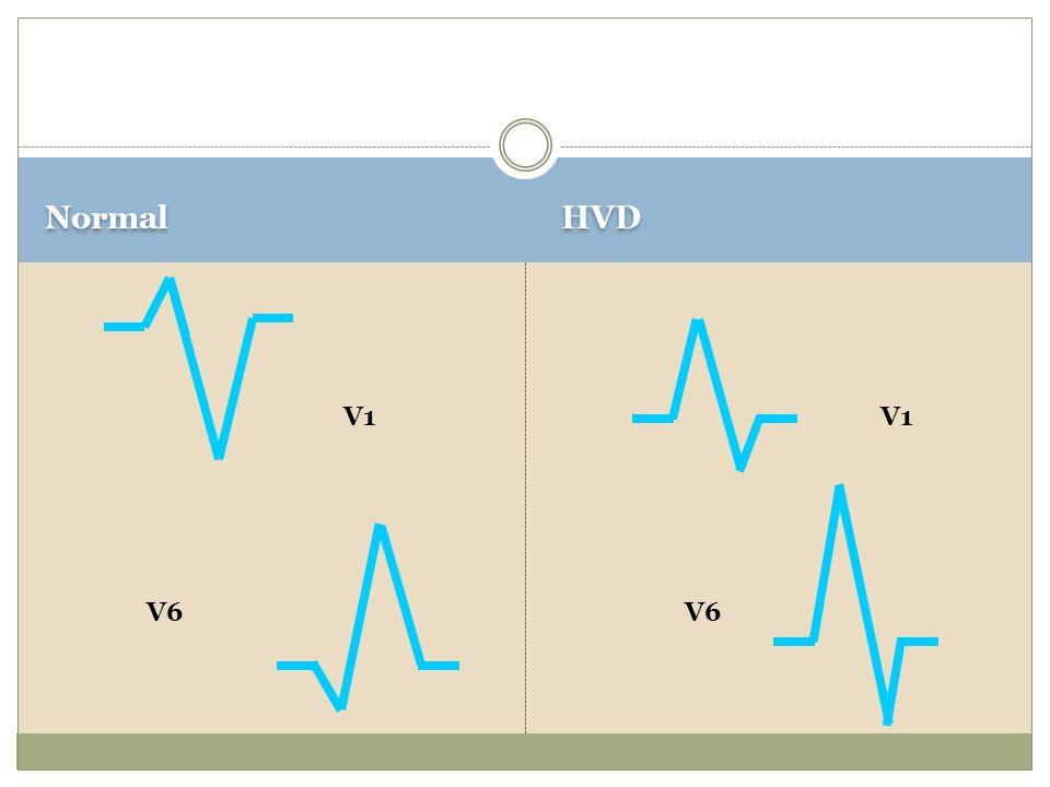 Normal HVD V1 V1 V6 V6