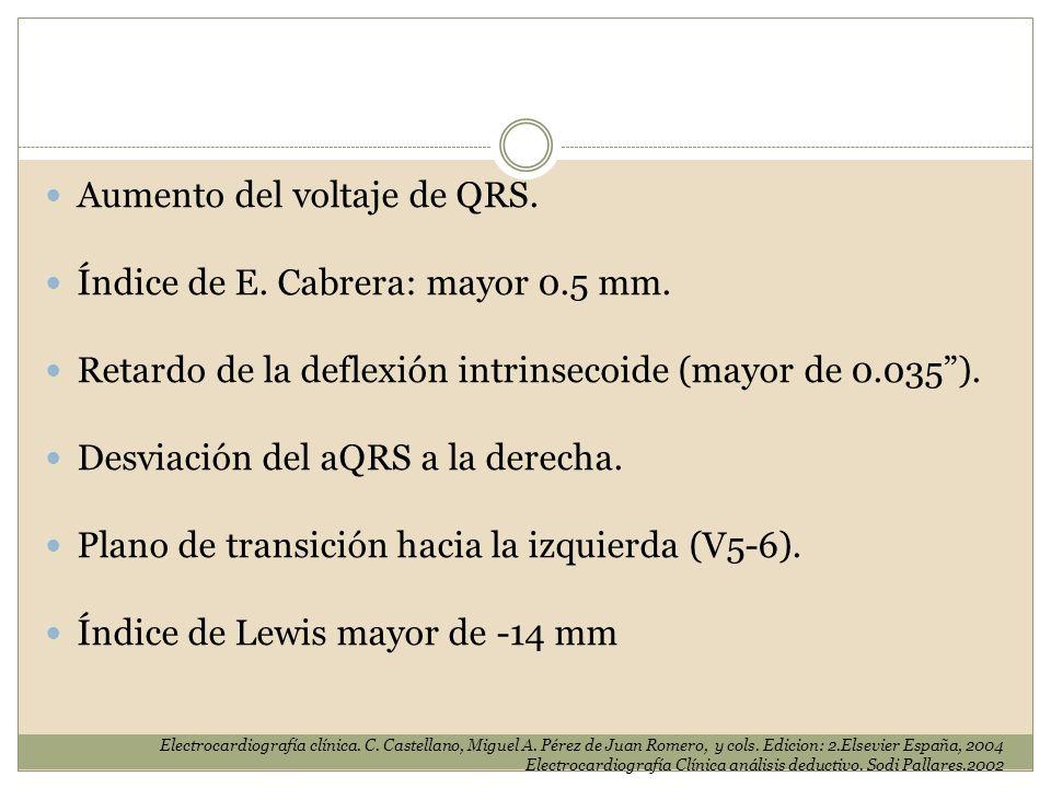 Aumento del voltaje de QRS. Índice de E. Cabrera: mayor 0.5 mm.