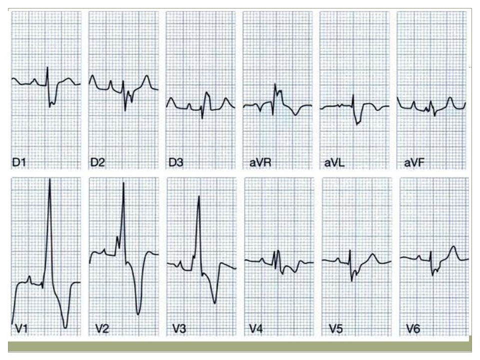 Paciente pqx de tetralogia de fallot HAD (onda P picuda y aumentadas de votaje en todas las derivaciones.