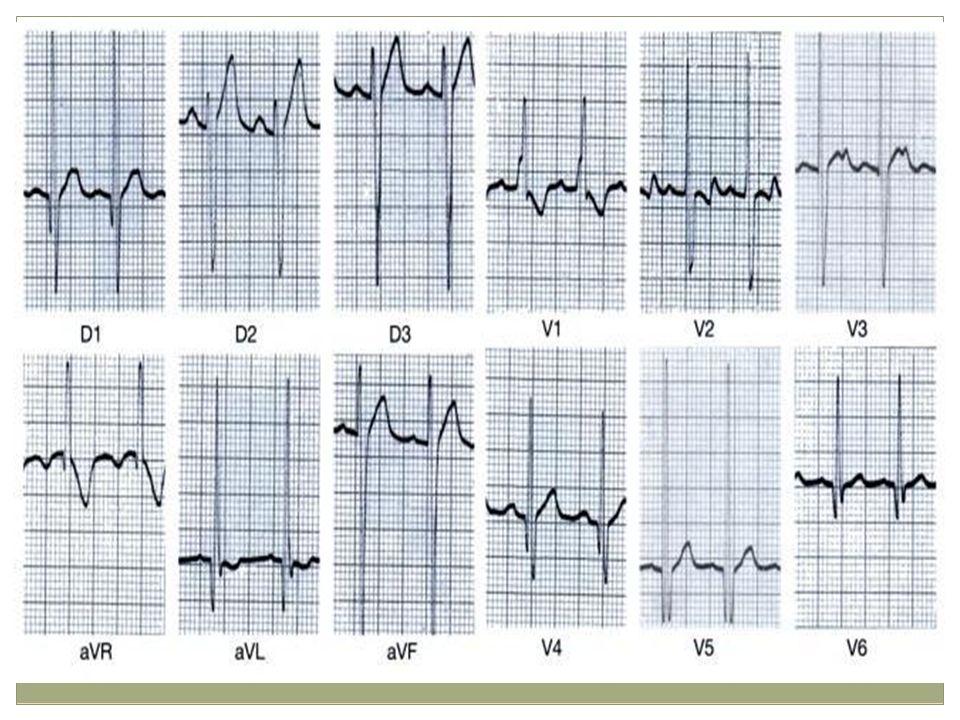 EKG: px con CIV HPA RS, FC 120 HBV R altas en V1-2, sobre carga de dicha cavidad y de ventriculo izq ondas R altas en V5-6