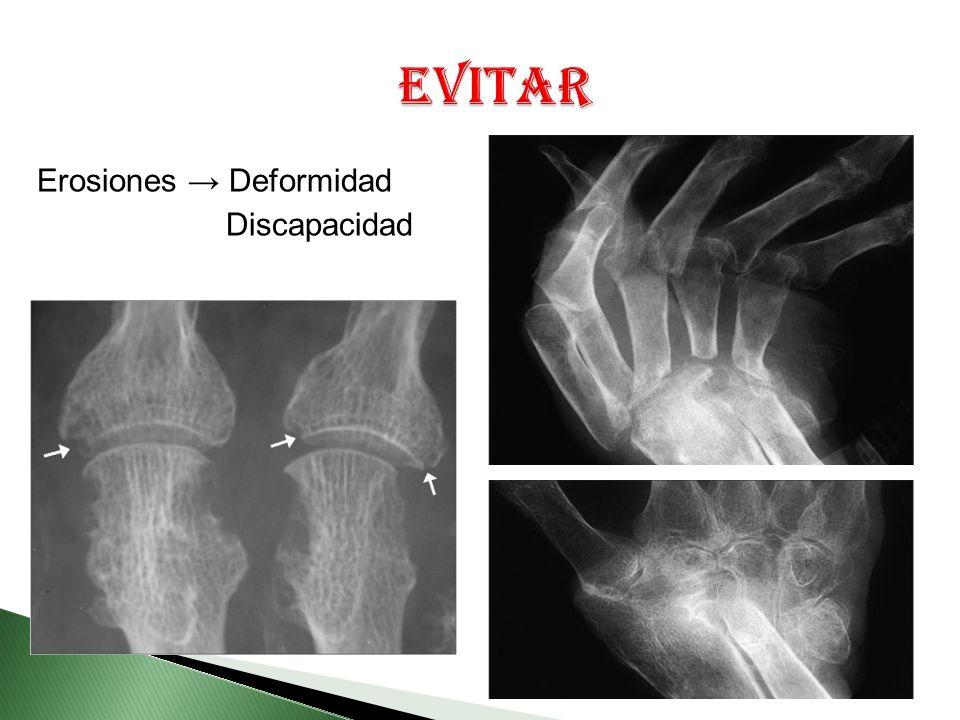 Evitar Erosiones → Deformidad Discapacidad
