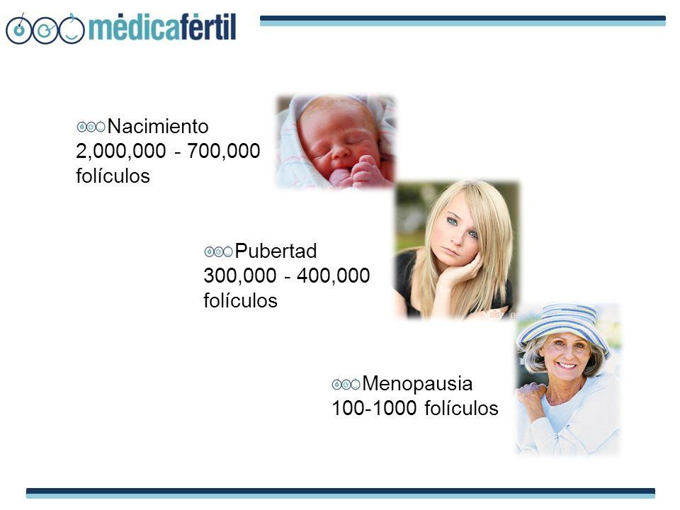 Nacimiento 2,000,000 - 700,000 folículos