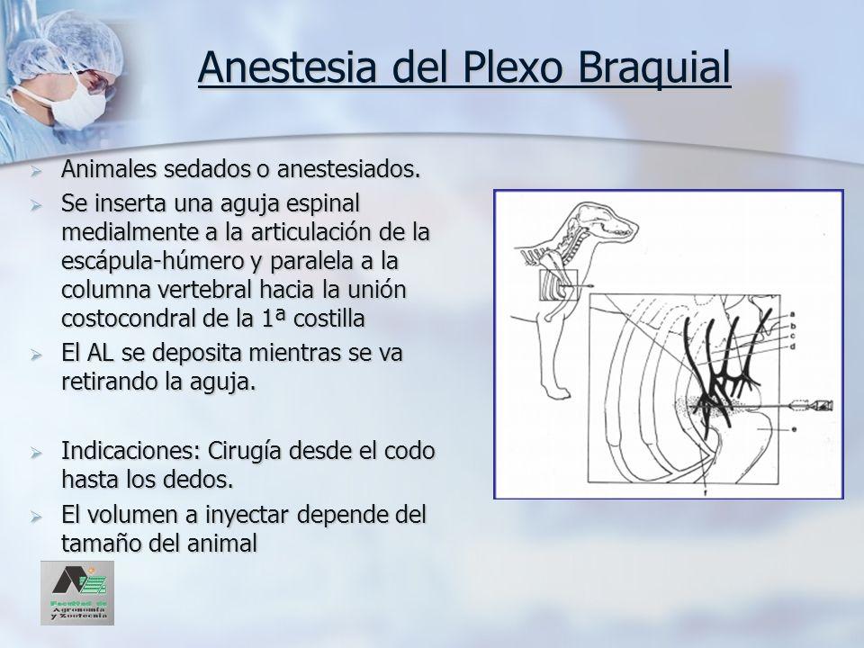 Anestesia del Plexo Braquial