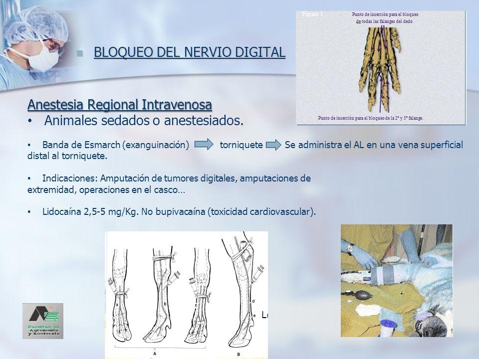 BLOQUEO DEL NERVIO DIGITAL