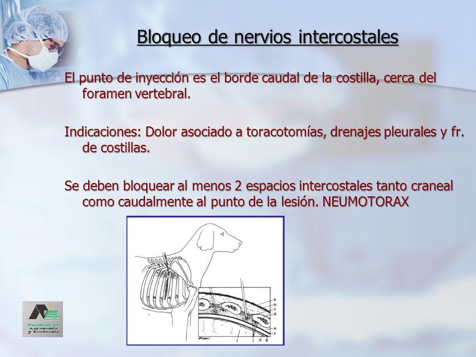 Bloqueo de nervios intercostales