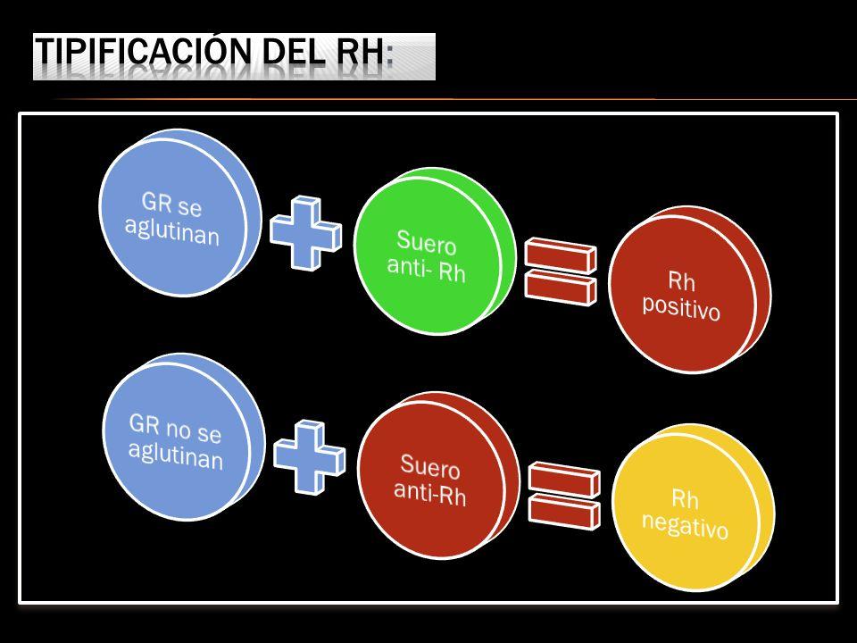 Tipificación del Rh: GR se aglutinan Suero anti- Rh Rh positivo