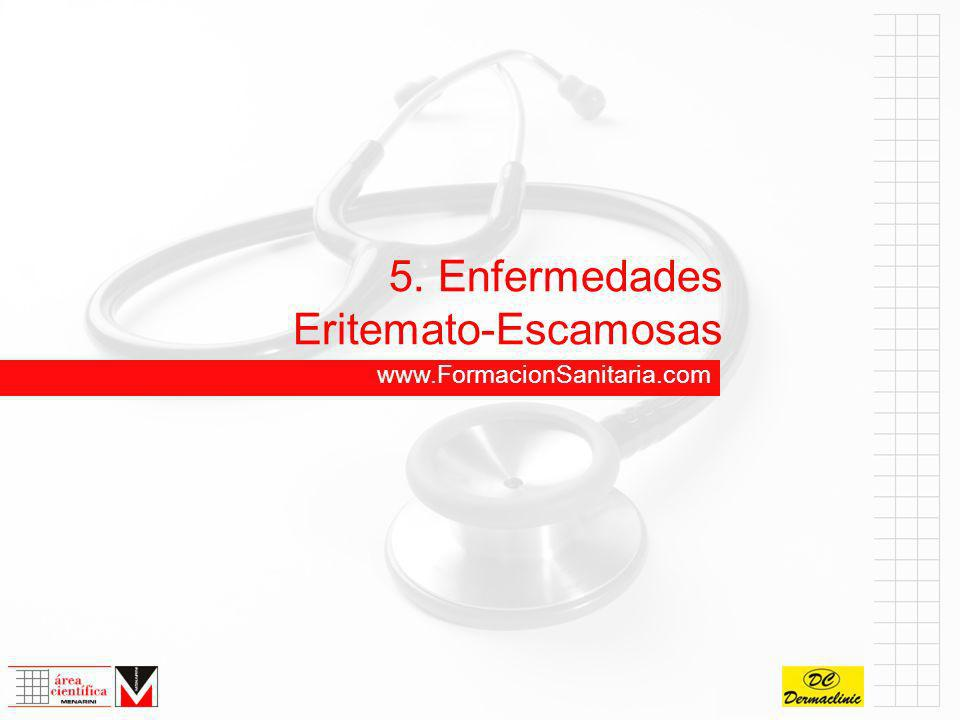 5. Enfermedades Eritemato-Escamosas