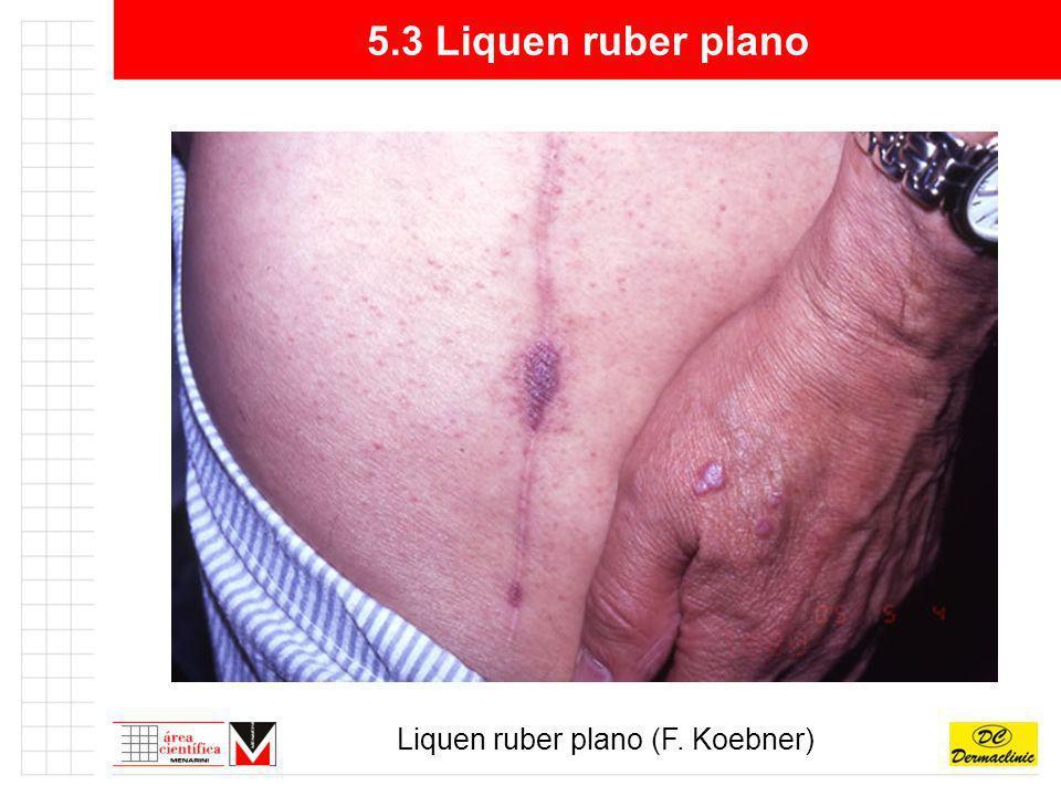 Liquen ruber plano (F. Koebner)