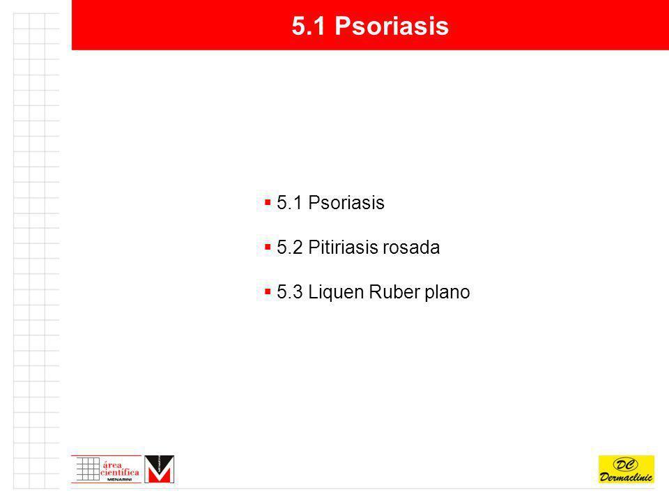 5.1 Psoriasis 5.1 Psoriasis 5.2 Pitiriasis rosada