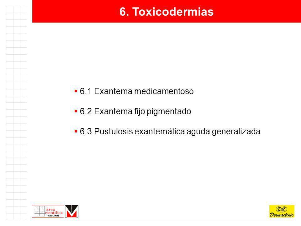 6. Toxicodermias 6.1 Exantema medicamentoso