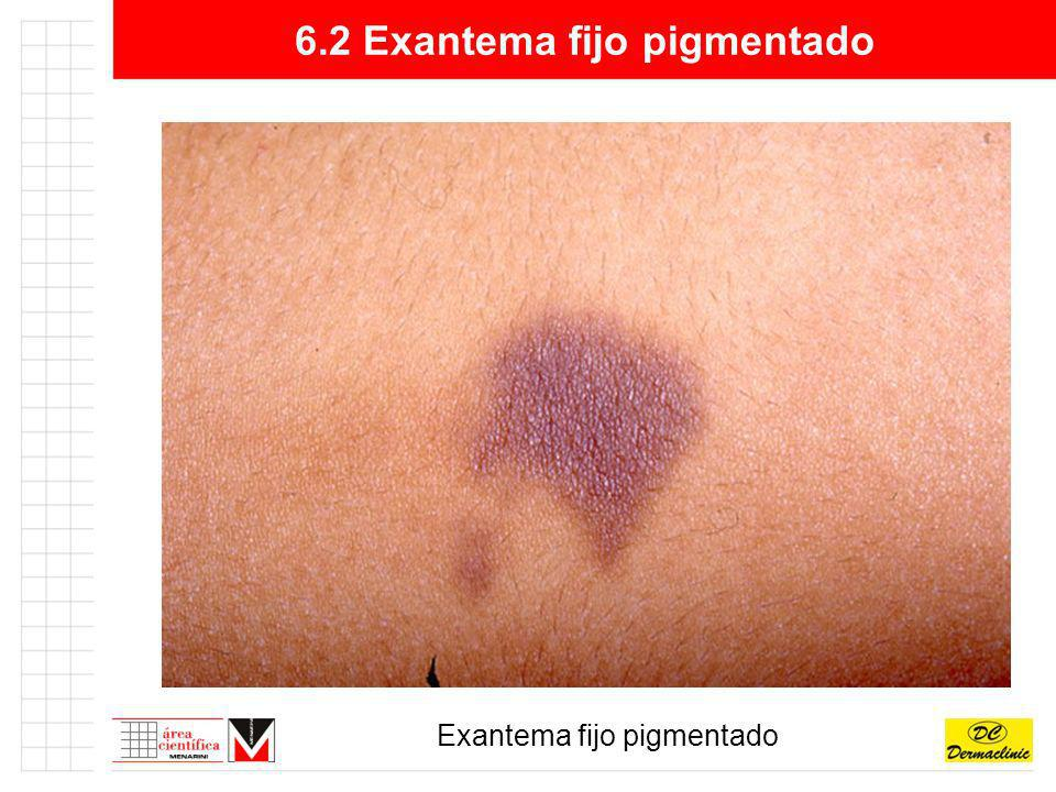 6.2 Exantema fijo pigmentado