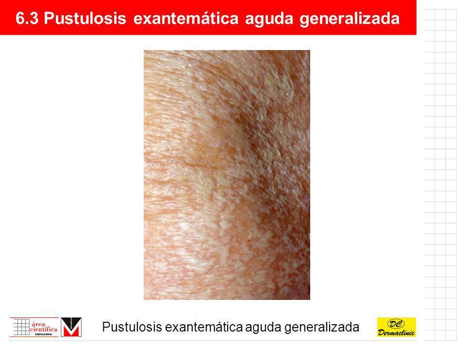 6.3 Pustulosis exantemática aguda generalizada