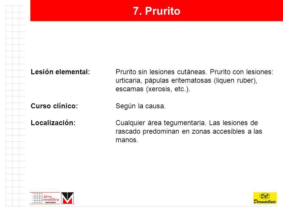 7. Prurito