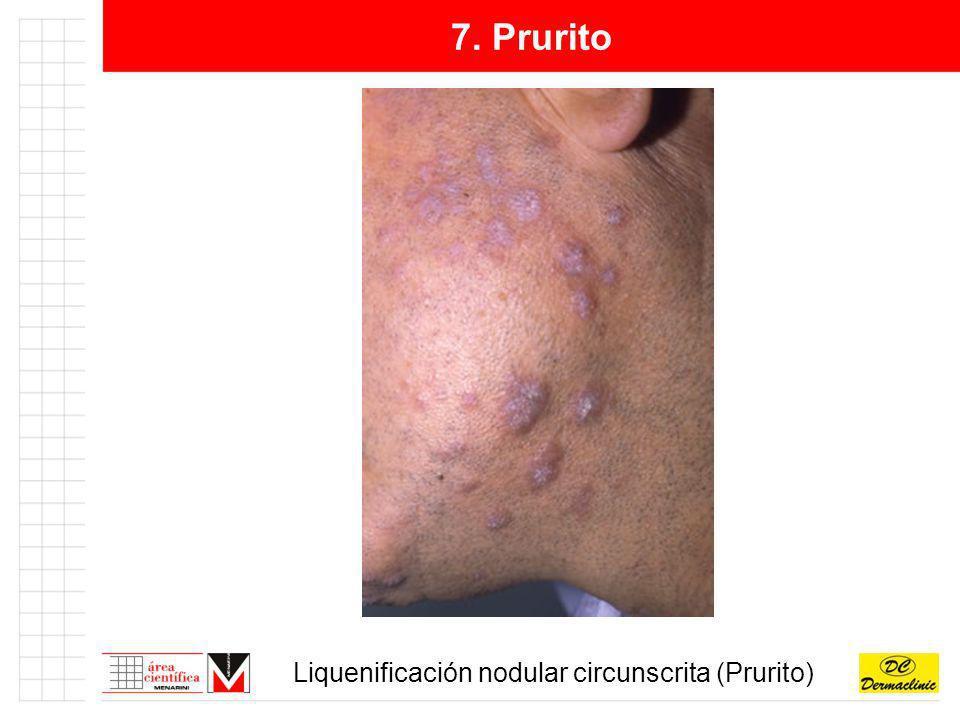 7. Prurito Liquenificación nodular circunscrita (Prurito)