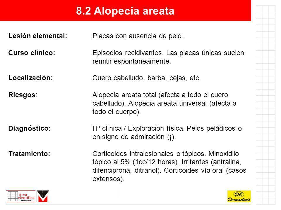 8.2 Alopecia areata Lesión elemental: Placas con ausencia de pelo.