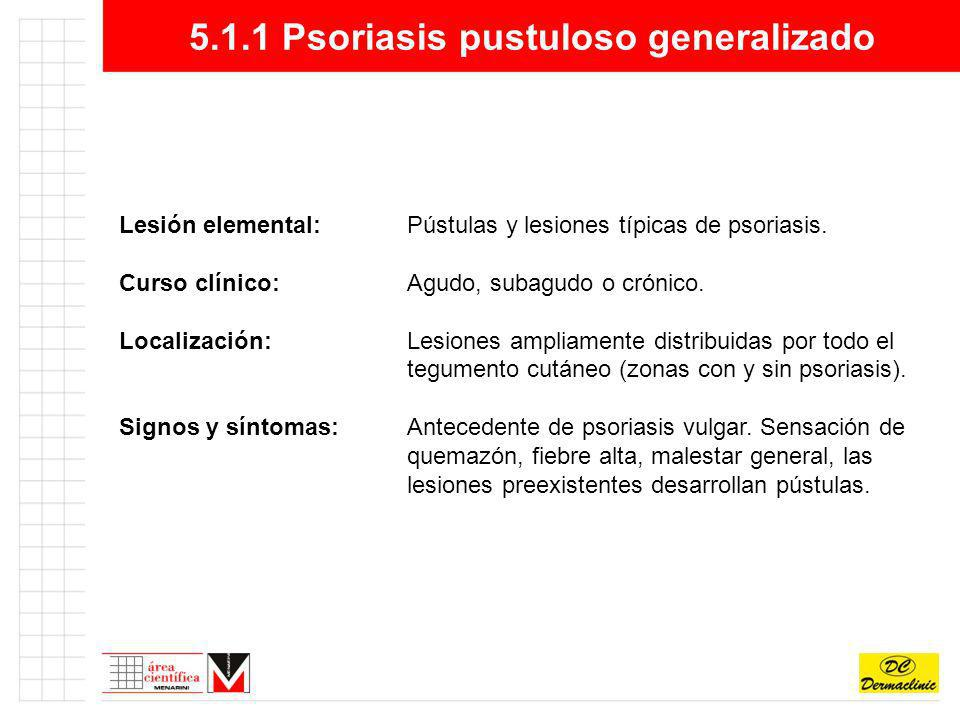 5.1.1 Psoriasis pustuloso generalizado