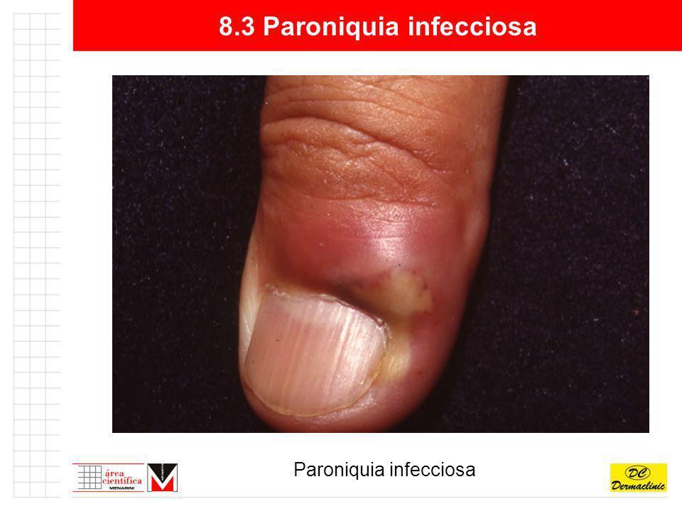 8.3 Paroniquia infecciosa