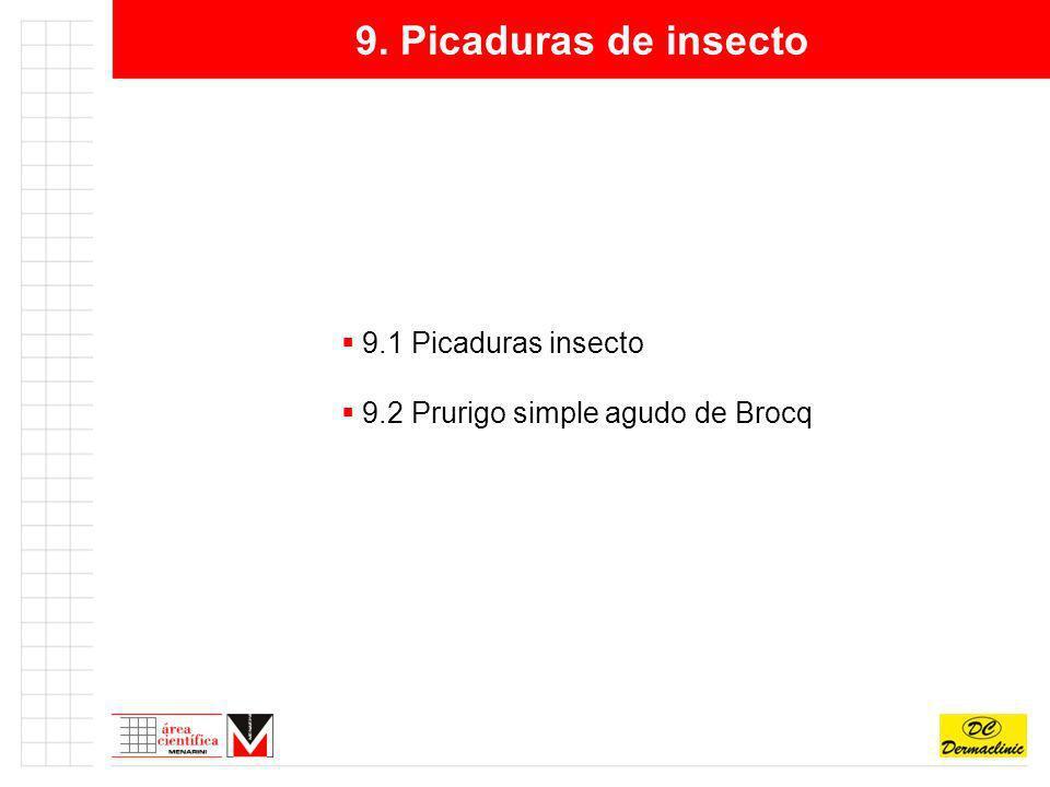 9. Picaduras de insecto 9.1 Picaduras insecto