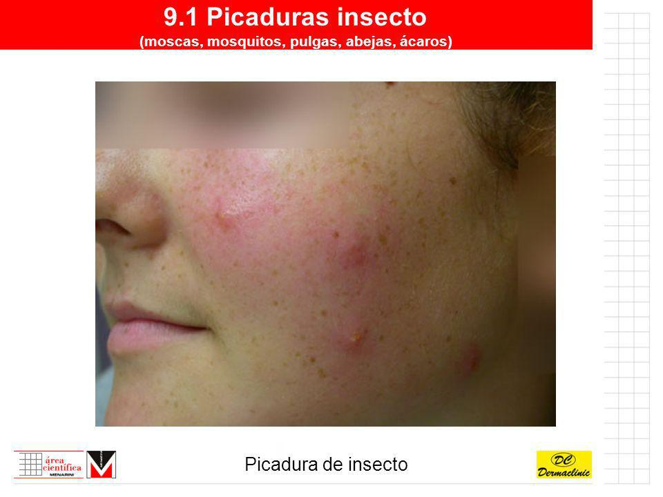 9.1 Picaduras insecto (moscas, mosquitos, pulgas, abejas, ácaros)